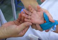 6 trẻ tử vong vì tay - chân - miệng, 2 điều cha mẹ phải nằm lòng để con không thiệt mạng