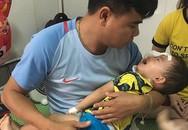 Bé 2 tuổi ở Nghệ An bị chó becgie cắn tổn thương mặt