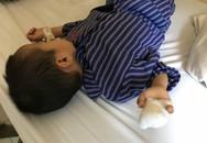 Bé trai mất 2 ngón tay khi bắt chước mẹ cắt quả chuối