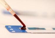 Bước tiến mới về vắc xin ngừa HIV
