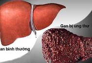 Ung thư gan dẫn đầu các ca bệnh ung thư tại Việt Nam