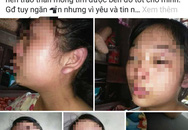Vụ mẹ trẻ 16 tuổi cầu cứu vì chồng bạo hành: Người chồng nói mình bị 'oan'?
