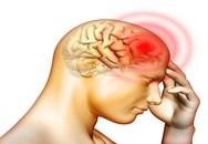 Người đàn ông bị xuất huyết não suýt mất mạng chỉ vì chủ quan nghĩ rằng cơn đau đầu mình gặp là do cảm lạnh