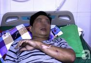 Leo lên cao hàn sắt sửa quán ăn, thanh niên bị điện giật ngưng tim và 5 phút hồi sinh thần kỳ