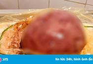 Khối u xơ tử cung to bằng thai nhi 9 tháng tuổi