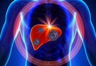 """7 điều sống còn nhất định phải biết để bệnh gan không """"quấy rầy"""""""