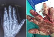 Chủ quan, nam giới suýt mất các ngón tay vì cưa máy