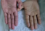 Tỉnh táo với 5 dấu hiệu của bệnh thiếu máu mà không phải ai cũng nhận ra