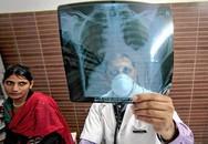 WHO: Lao vẫn là căn bệnh truyền nhiễm nguy hiểm nhất