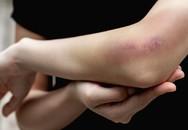Mẹo sơ cứu những thương tổn thường gặp mà không cần đến bác sĩ