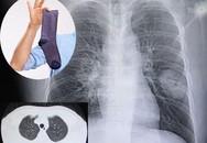 Người đàn ông mắc bệnh nấm phổi chỉ vì thói quen kỳ dị mỗi khi đi làm về