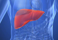 Dấu hiệu cho thấy gan của bạn đang chứa đầy chất độc