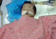 Hà Nội: Bé gái 8 tháng bị tiêm nhầm kali có dấu hiệu chết não