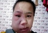 Niềm vui của cô gái có 10 năm đeo khối u khổng lồ trên mặt