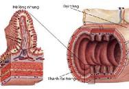 """Sáng chế """"đột phá"""" của người Nhật trong hỗ trợ điều trị viêm đại tràng"""