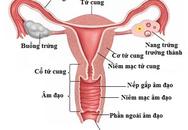7 dấu hiệu ung thư buồng trứng mọi phụ nữ cần cảnh giác