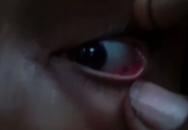 60 con kiến làm tổ, bò ra bò vào trong mắt của bé gái 11 tuổi