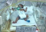 Bé sơ sinh nặng 1,6 kg bị teo thực quản bẩm sinh