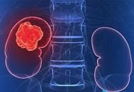 3 dấu hiệu điển hình bệnh ung thư thận