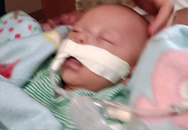 Bé 7 tuần tuổi chết trong khi bú: Người mẹ chia sẻ câu chuyện để không ai mắc phải sai lầm