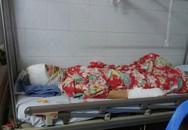 Người vợ bị chồng cũ tạt axit ở Hà Nội: 'Con không muốn anh ấy đi tù, con tha thứ'