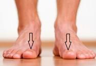 Bàn chân có 5 dấu hiệu này thì đừng chủ quan mà nên đi khám ngay