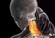 Một thanh niên 27 tuổi chết sau khi massage: Vị trí này thực sự không nên tùy tiện động tới