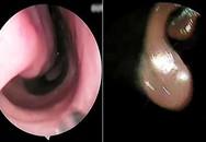 Con vắt dài 7 cm sống ký sinh trong mũi bệnh nhân