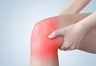 Có nên chườm nóng khi đau sưng khớp gối?