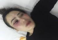 Nam thanh niên đánh dập mặt một phụ nữ vì cái bánh xèo