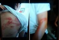 Hà Nội: 2 cháu bé bị bố đẻ khóa trái cửa bạo hành dã man, bà ngoại gửi đơn cầu cứu