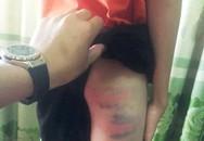 Nghệ An: Phòng GD&ĐT huyện Đô Lương nói gì về vụ cô giáo đánh con chồng nhập viện