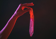 Lỡ bao cao su lọt vào vùng kín phải làm sao: Bác sĩ Mỹ hướng dẫn cách xử lý an toàn