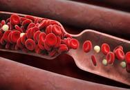 """Chuyên gia chia sẻ cách làm sạch """"rác"""" trong mạch máu: Việc làm nhỏ giúp ngăn ngừa tử vong"""