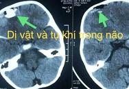 Nghịch súng bắn đạn bi, bé trai bị chấn thương sọ não