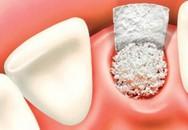 Chữa trị viêm tủy răng thế nào?