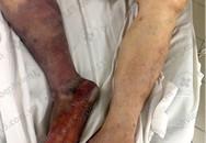 TP.HCM: Người đàn ông 46 tuổi phải cắt chân vì uống thuốc tim mạch không đều