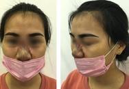 Chị em gặp họa vì muốn làm đẹp tức thì, chuyên gia cảnh báo tuyệt đối không tiêm filler nâng mũi ở những cơ sở spa