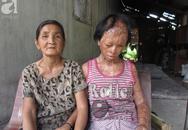 Bà nội bé gái bị tạt axit năm 7 tuổi vì mẹ 'giật chồng' người khác rồi bỏ rơi đã đến TP.HCM để xin đôi mắt tử tù cứu cháu