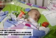 Bé 2 tuổi nhiễm HIV sau khi điều trị hóc táo ở viện