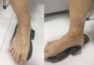 Đi massage quý ông ở Hà Nội bị bỏng rộp chân