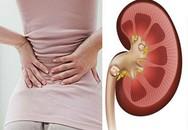 Nếu có dấu hiệu đau lưng, bạn có thể mắc một trong 8 bệnh nguy hiểm