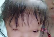 Nỗi đau quặn thắt của người mẹ nghèo chỉ mong con thơ có một bên mắt sáng