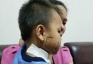 Rơi vào quạt công nghiệp, bé trai bị cánh quạt cắt nát mặt