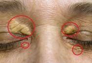 """10 dấu hiệu lạ trên da """"tố cáo"""" bệnh tiểu đường, ung thư, viêm gan và tuyến giáp"""