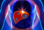 Điều cần biết khi tiêm phòng viêm gan B và cách phòng ngừa