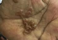 """Phát hoảng vì ấu trùng """"đào hầm"""" trong lòng bàn tay"""