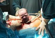 """Chứng kiến quá trình gây tê tủy sống trước khi sinh mổ, chị em bảo nhau: """"Thôi cố gắng đẻ thường!"""""""