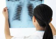 Những điều cần biết về bệnh lao màng phổi