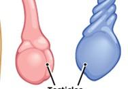 Bé trai 6 tuổi phải cắt bỏ tinh hoàn sau một đêm đau bụng